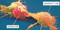 t-cell-cancer-graphic.jpg