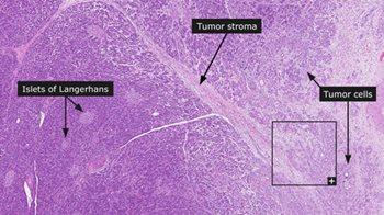 histology slide showing pancreatic cancer cells and tumor stroma