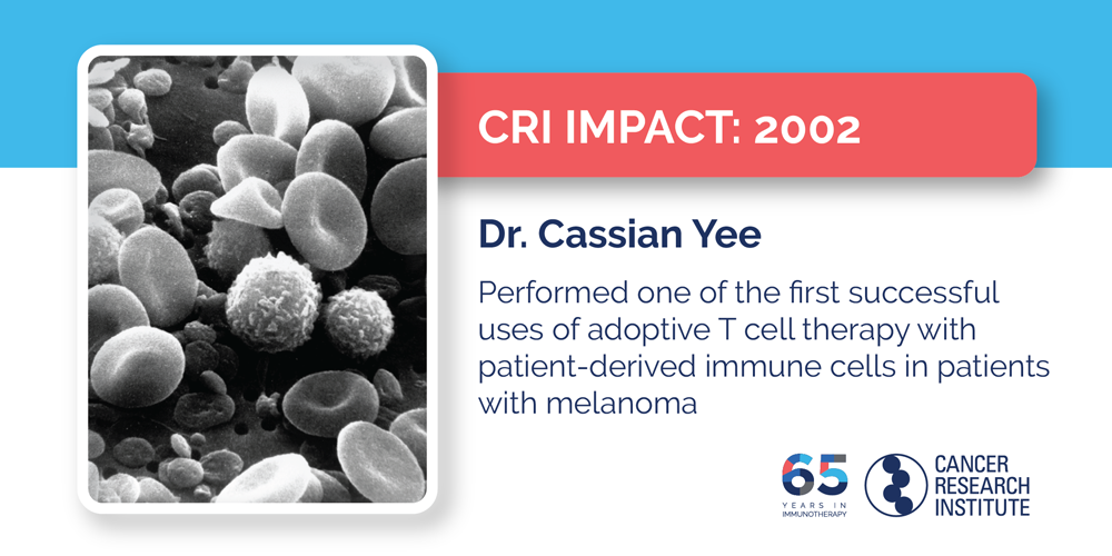 2002 Dr. Cassian Yee performed one of the first successful uses of adoptive T cell therapy with patient-derived immune cells in patients with melanoma
